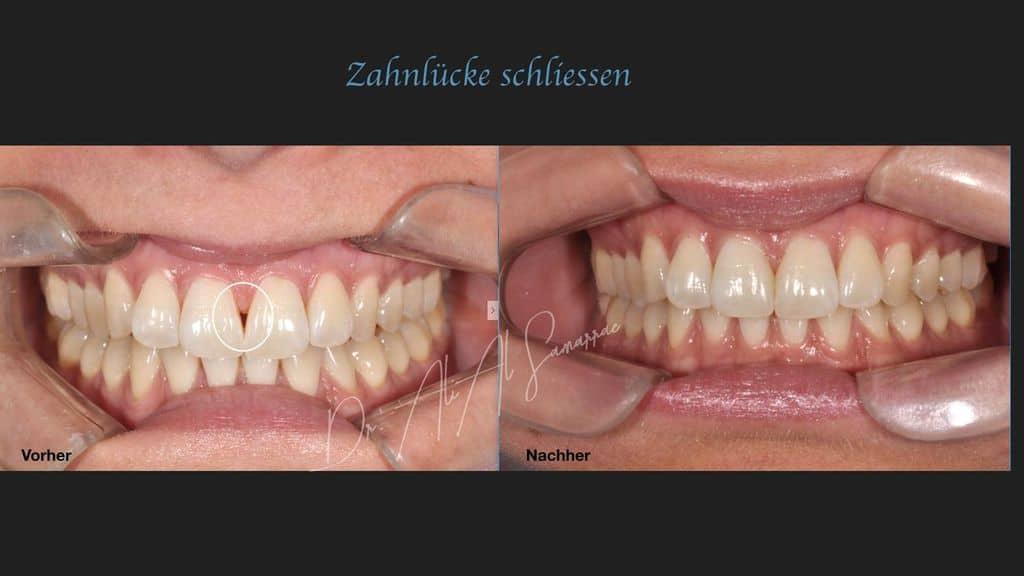 Schließen einer Zahnlücke mit Hilfe einer Kunststofffüllung - Beispiel 8
