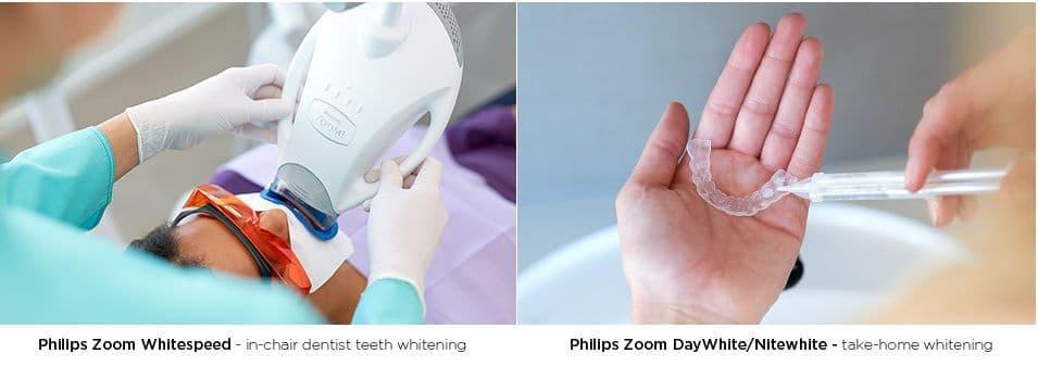 Behandlung mit der Philips Zoom Lampe und einer Zahnbleching-Schiene für Zuhause.