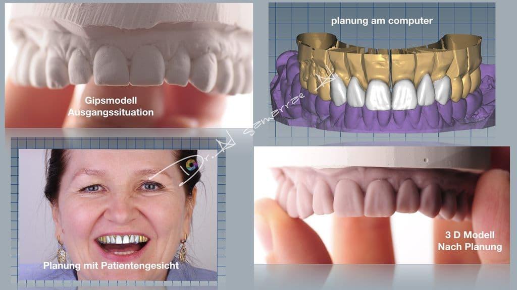Veneers und Lumineers werden vor der Herstellung eines 3D-Modells sorgfältig am Computer geplant.
