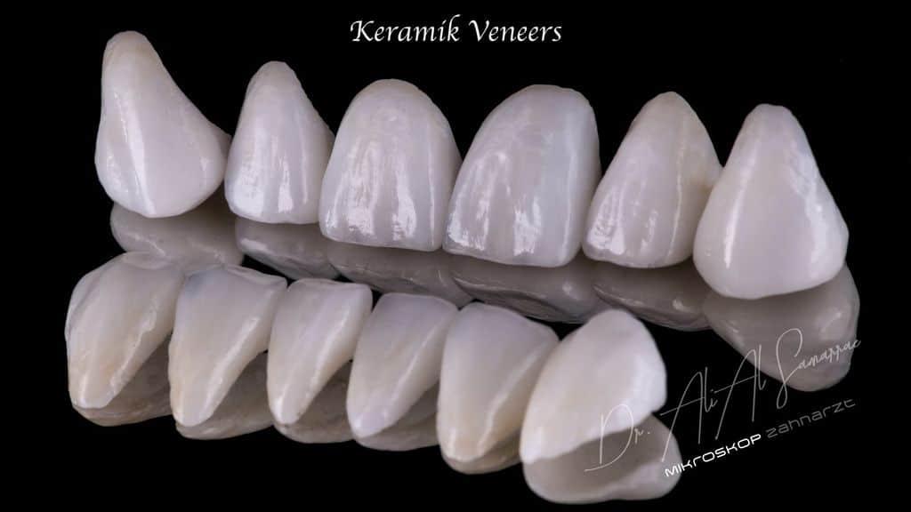 Detailansicht von hergestellten Keramik-Veneers