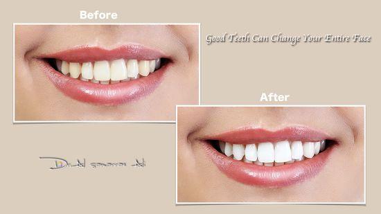 Sehen Sie es im direkten Vergleich: vor und nach dem Zahnbleaching - ein großer Unterschied!
