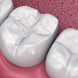 Zahnfüllungen und Inlays