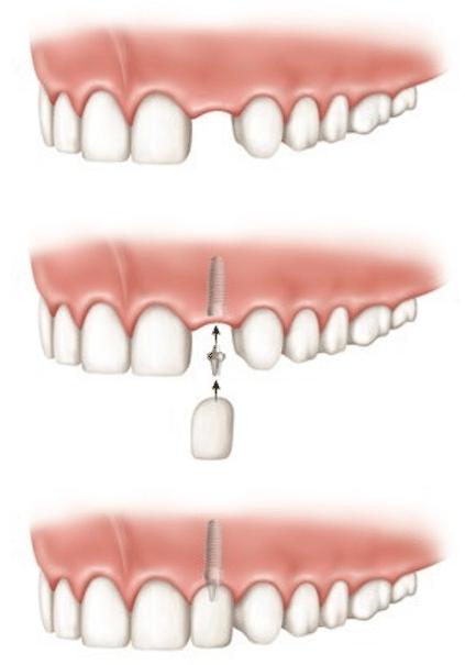 Ein Einzelzahnimplantat ersetzt einen einzelnen fehlenden Zahn im Gebiss durch ein Implantat.