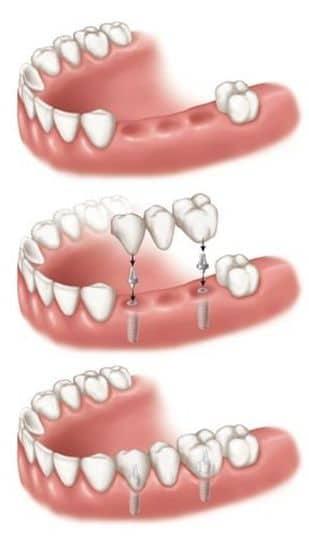 Das Ersetzen mehrerer Zähne durch Zahnimplantate verleiht Zähnen eine ideale Passform, ein gutes Gefühl und perfekte Funktionalität.