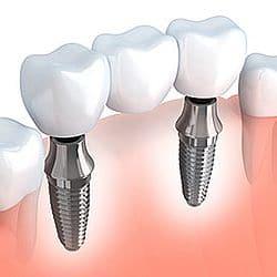 Zahnimplantate und Zahnersatz