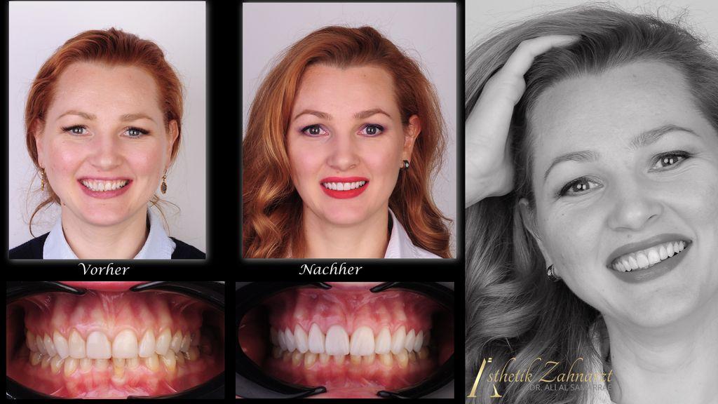 Dame Vorher Nachher, Zähne und Lächeln im Vergleich