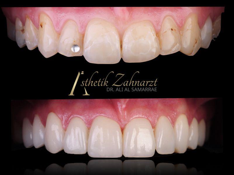 Zahnarzt Wien 1040