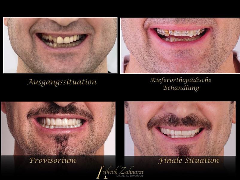 kiefer zahnarzt wien digital smile