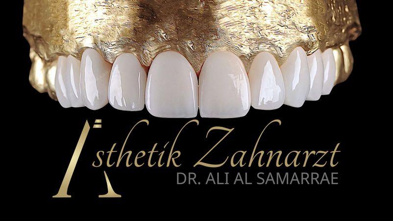 Veneers Lumineers - Dr. AL Samarrae