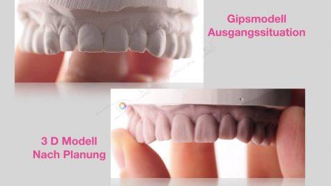 Veneers Gipsmodell und 3D-Modell nach Planung