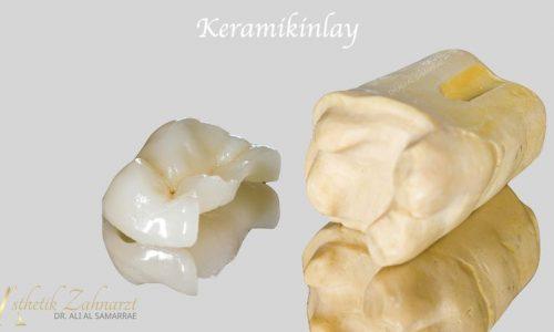 Keramik Inlay DR.AlSAMARRAE