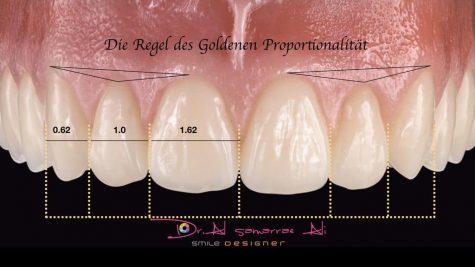 Die Regel der goldenen Proportionalität in der Zahnästhetik