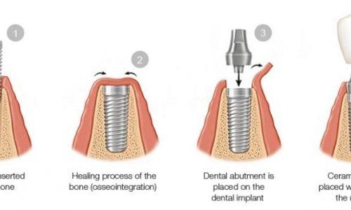 Die Schritte beim Einsetzen eines Implantats in den Knochen des Patienten