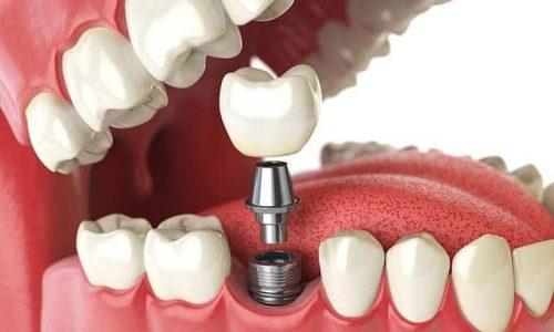 3D Darstellung eines Einzelzahnimplantats als Zahnersatz