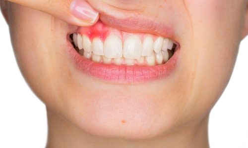 Entzündetes Zahnfleisch im Mund einer Patientin