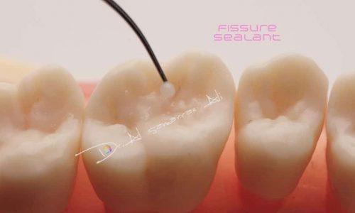 Versiegelung einer Zahnfissur