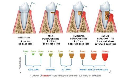 Beispielhafte Darstellung für Knochenverlust - Gingivitis und Periodontitis