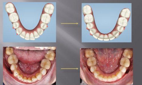 Vergleich vorher und nachher bei einer Zahnkorrektur mit Invisalign.