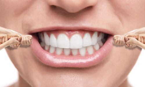 Durch Invisalign werden Zähne gerade gerückt, und das nahezu unsichtbar durch transparente Zahnschienen.