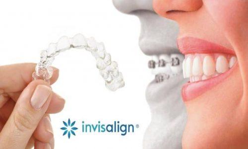 Die transparente Invisalign-Zahnschiene ist, im Gegensatz zu einer herkömmlichen Zahnspange, so gut wie nicht sichtbar.