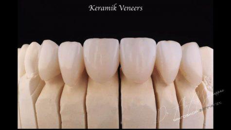 Modellhafte Darstellung von Keramik Veneers