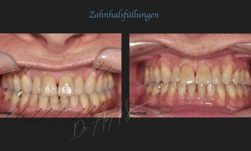 Zahnhalsfüllungen - Beispiel 7