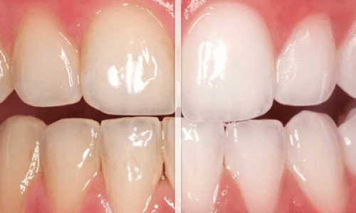 Eine professionelle Zahnreinigung beim Zahnarzt sorgt für weisse und gesunde Zähne.