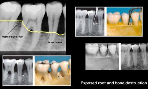 Beispiel einer fortgeschrittenen Knochenzerstörung durch Parodontitis