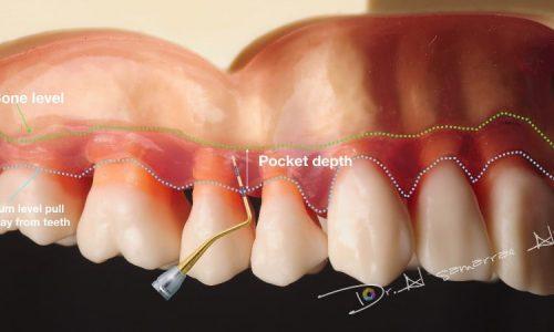 Beispiel für den Rückgang des Zahnfleisches und länger werdende Zähne durch Parodontitis