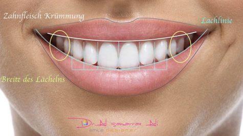 Die Lachlinie, die Zahnfleischkrümmung und die Breite des Lächelns sind wichtige Faktoren im Smile Design.
