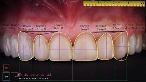 Die richtigen Proportionen der Zähne sind wesentlich für ein ästhetisches Gesamtbild.