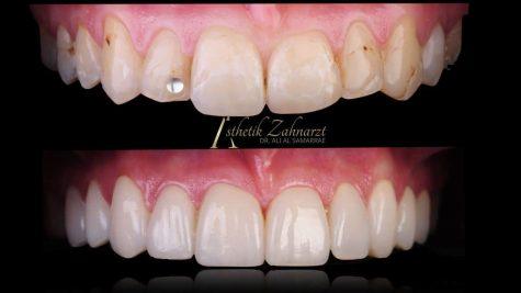 Zähne Großaufnahme im Vergleich Veneers und Lumineers