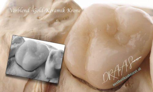 Verblend-Gold-Keramik Zahnkrone