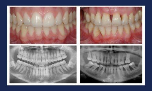 Vergleich eines gesunden Gebisses mit einem Gebiss, das durch Parodontitis geschädigt ist