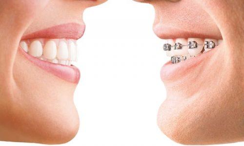 Vergleich der transparenten Invisalign-Schiene mit einer normalen Zahnspange