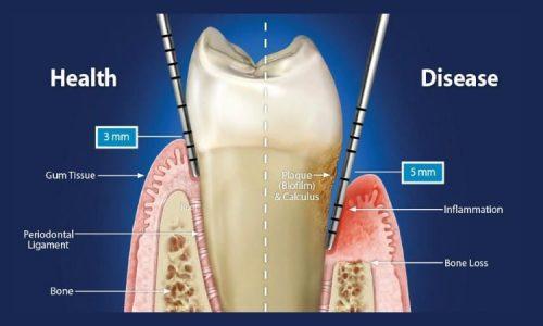 Beispielhafte Darstellung einer Zahnfleischentzündung und dadurch entstehende Parodontitis