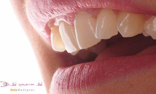 Nach einer Mundhygiene-Sitzung beim Zahnarzt sind Ihre Zähne bestens gesäubert.