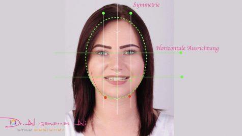 In der Zahnästhetik spielt die gesamte Gesichtssymmetrie eine wichtige Rolle für das Ergebnis.