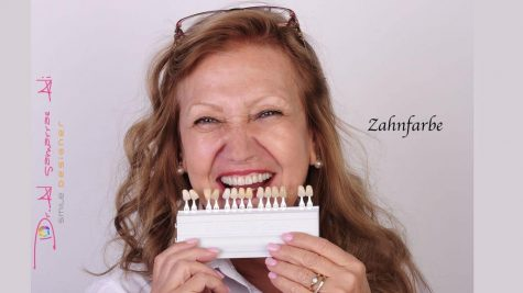 Die richtige Zahnfarbe ist wichtig für das ästhetische Gesamtergebnis.