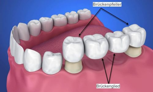 Schematische Darstellung einer Zahnbrücke mit Brückenpfeiler und Brückenglieder