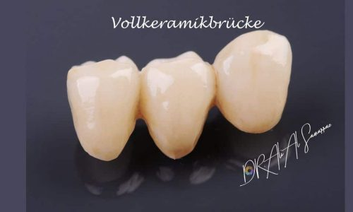 Zahnbrücke Vollkeramikbrücke