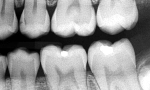 Eine versiegelte Zahnfissur im Röntgenbild