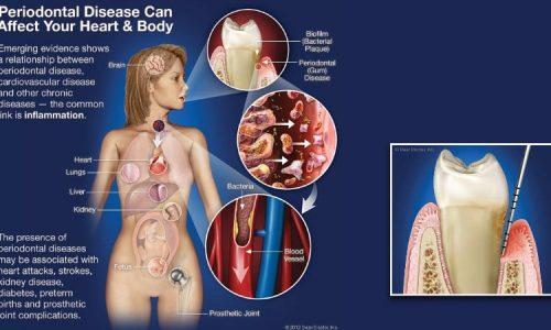 Ein entzündetes Zahnfleisch und daraus resultierende Parodontitis können das Herz und den gesamten Körper eines Menschen schädigen und zu schweren Krankheiten führen