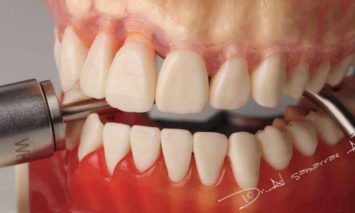 Eine regelmäßige Vorsorgeuntersuchung beim Zahnarzt sorgt für langfristige Zahngesundheit