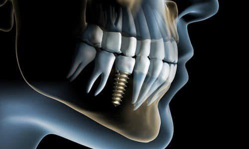 3D Visualisierung eines Implantats im Mund eines Patienten