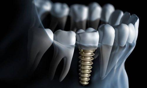 Computergeneriertes 3D-Modell eines Zahnimplantats