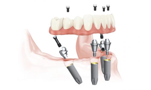 Graphische Visualisierung eines Zahnimplantats