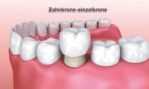 Visualisierung einer Zahnkrone als Einzelkrone im Gebiss