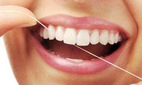 Die richtige Verwendung von Zahnseide gehört zu einer professionellen Zahnreinigung dazu.