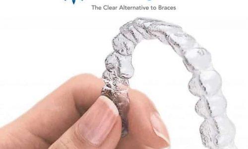 Die Invisalign Zahnschienen sind komplett transparent und können daher nahezu unbemerkt von anderen im Alltag getragen werden